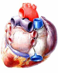 insuficienta cardiaca decompensata