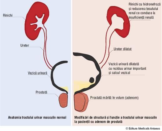 prostatita.adonisfarm.ro - Cancer de prostata ppt