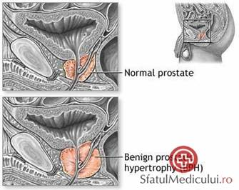 Adenomul de prostata - cauze, simptome si tratament - BodyGeek