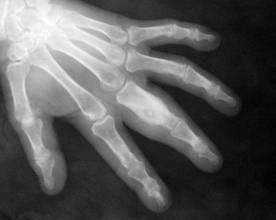 Tratamentul cu ultrasunete pentru osteoartrita